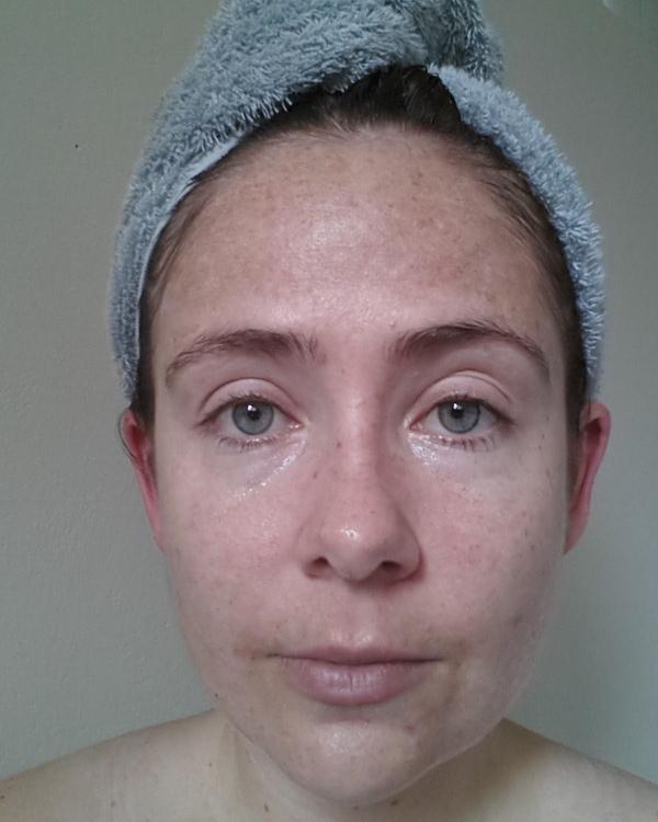 BioSurface Peel - 3 days later